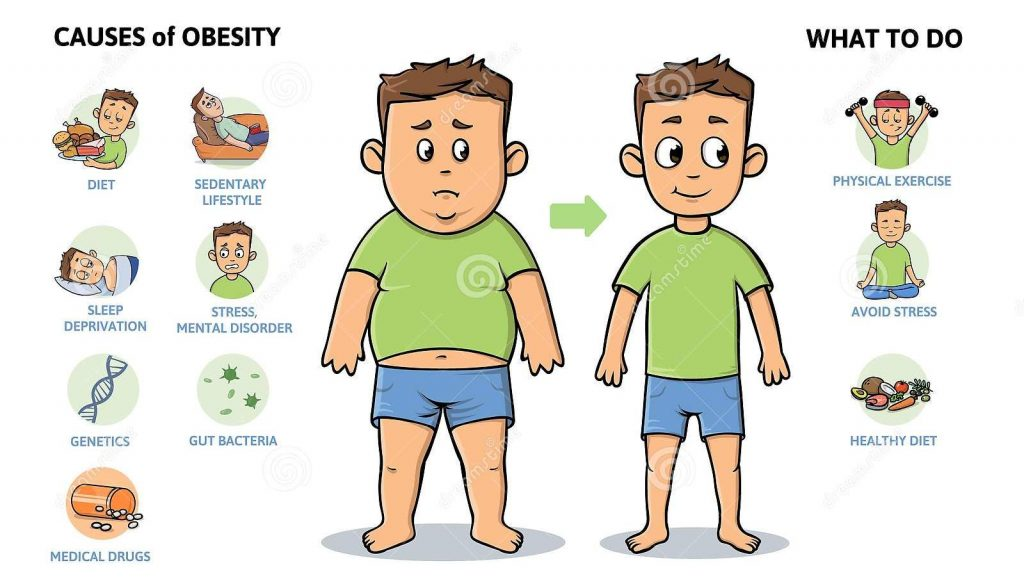Obesity: Causes & Prevention